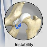Hip Instability